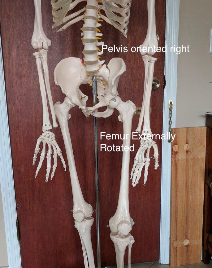 Pelvis oriented right, femur externally rotated Postural Restoration