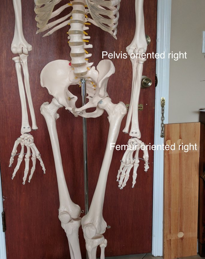 Pelvis and femur oriented to the right Postural Restoration
